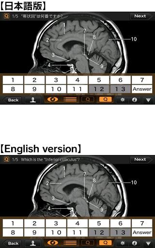 Interactive CT & MRI Anat.Lite 4 تصوير الشاشة