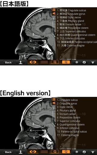 Interactive CT & MRI Anat.Lite 3 تصوير الشاشة