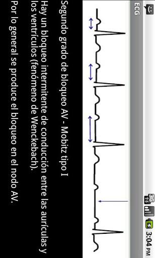 Electrocardiograma ECG Tipos 5 تصوير الشاشة