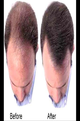 Baldness Guide screenshot 2