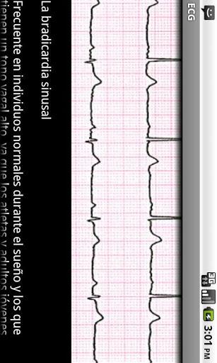 Electrocardiograma ECG Tipos 6 تصوير الشاشة