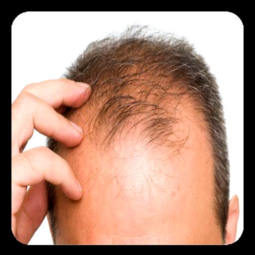 Baldness Guide icon