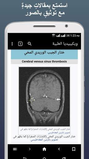 ويكيبيديا الطبية بلا إنترنت 3 تصوير الشاشة